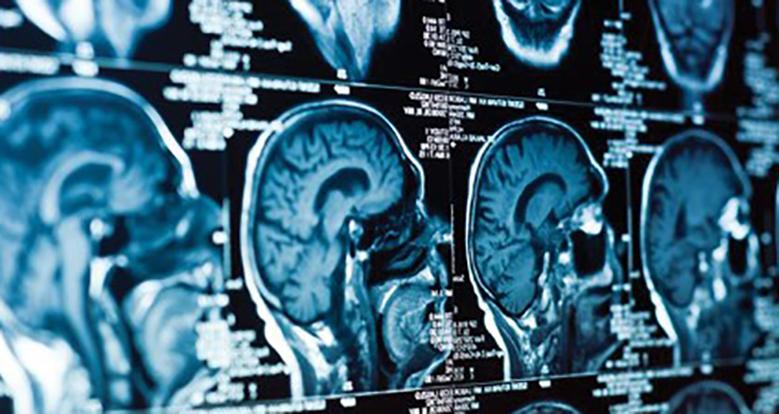Resultado de imagen para neuroimagen